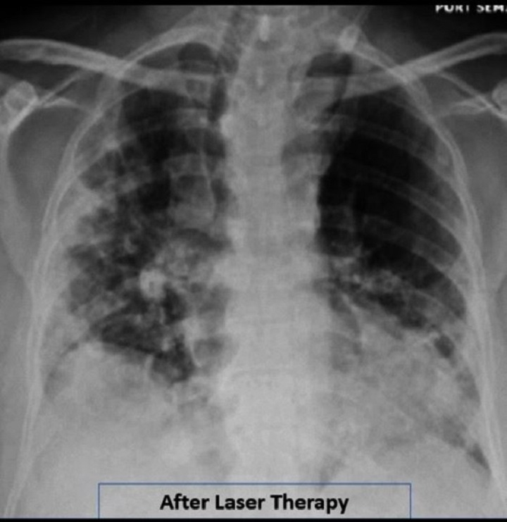 Research Covid19 - After MLS Laser treatment