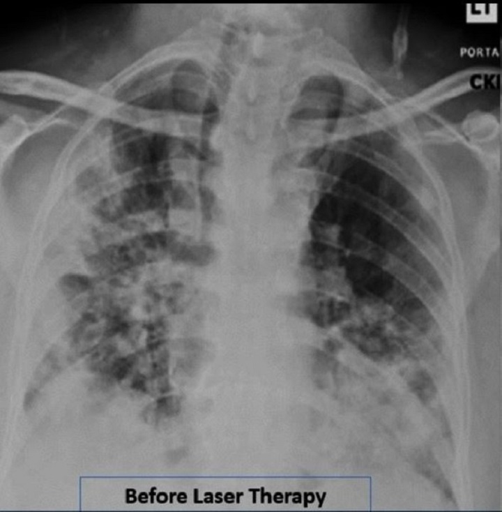 Research Covid19 - Before MLS Laser treatment