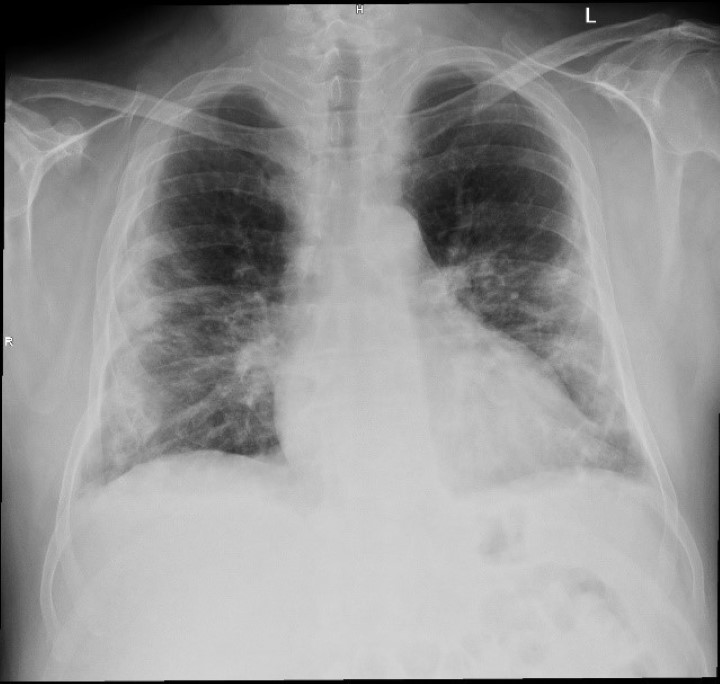 Chest X-rays before MLS