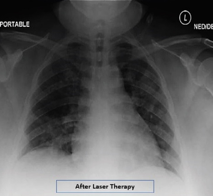 COVID19 case report - Radiographic assessment of lung edema - After MLS