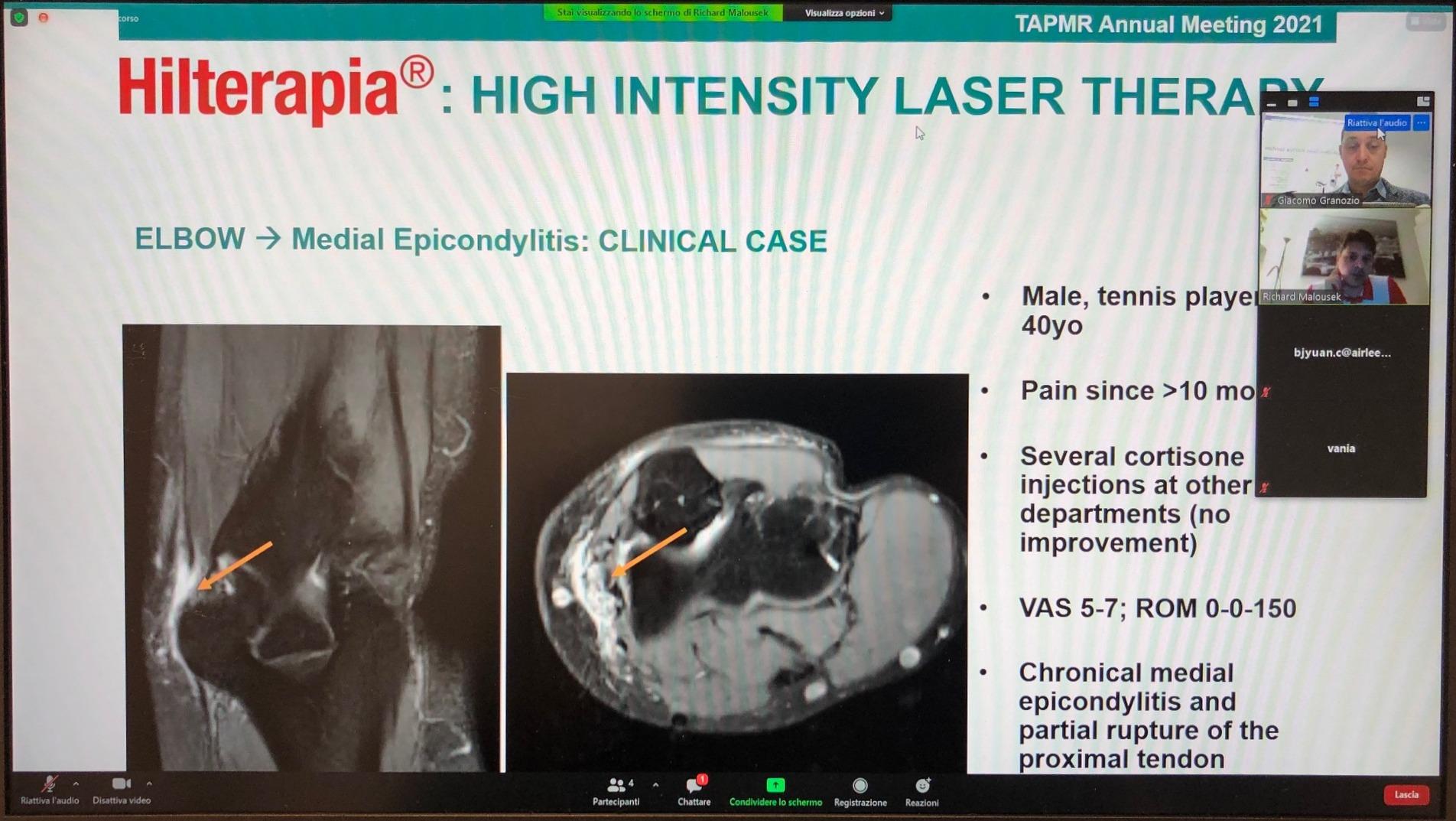 TAPRM 2021 - Hilterapia webinar with Dr Malousek