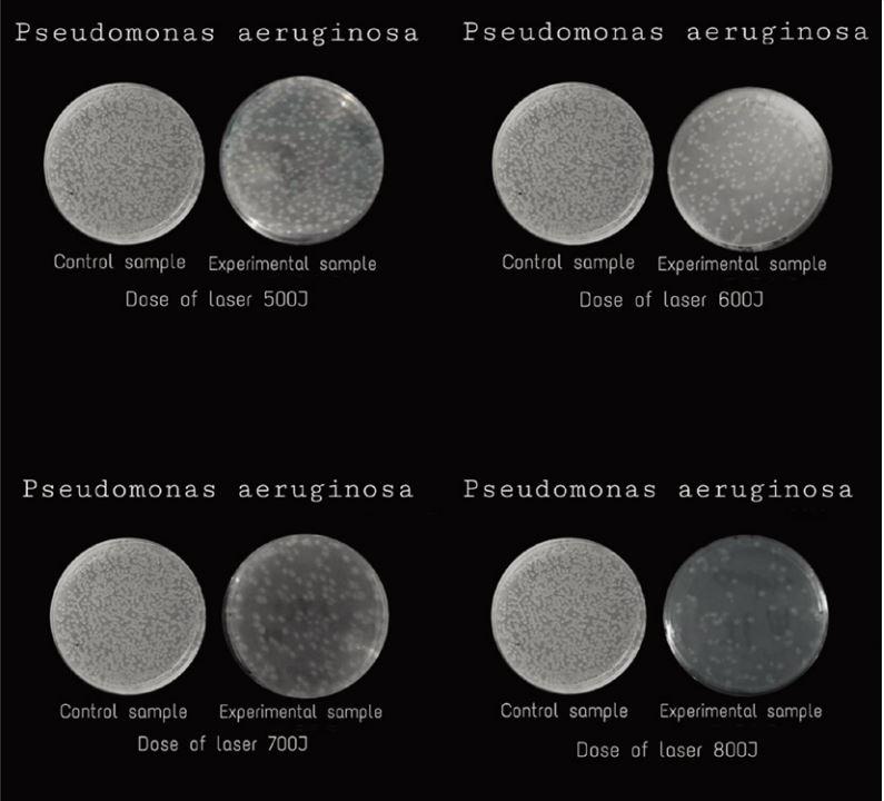 Hilterapia treatment pseudomonas aeruginosa