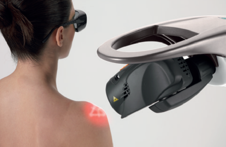M8 laser treatment - shoulder