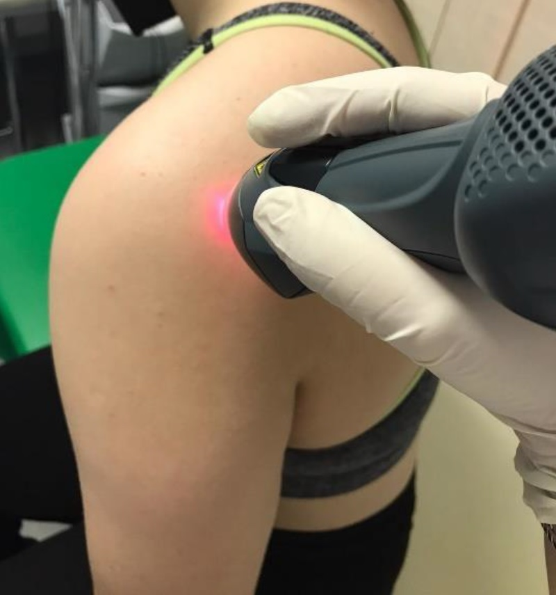 Mphi laser treatment for Subacromial Pain Syndrome