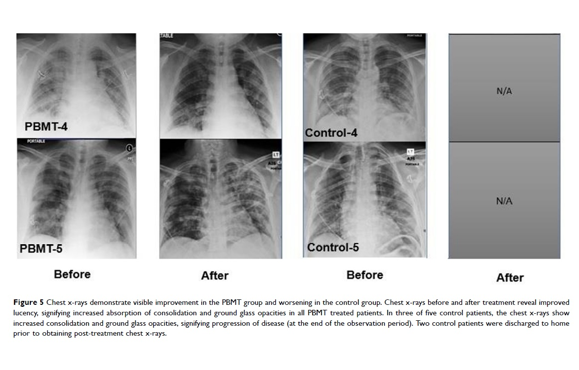 Chest X-rays 2 before and after MLS
