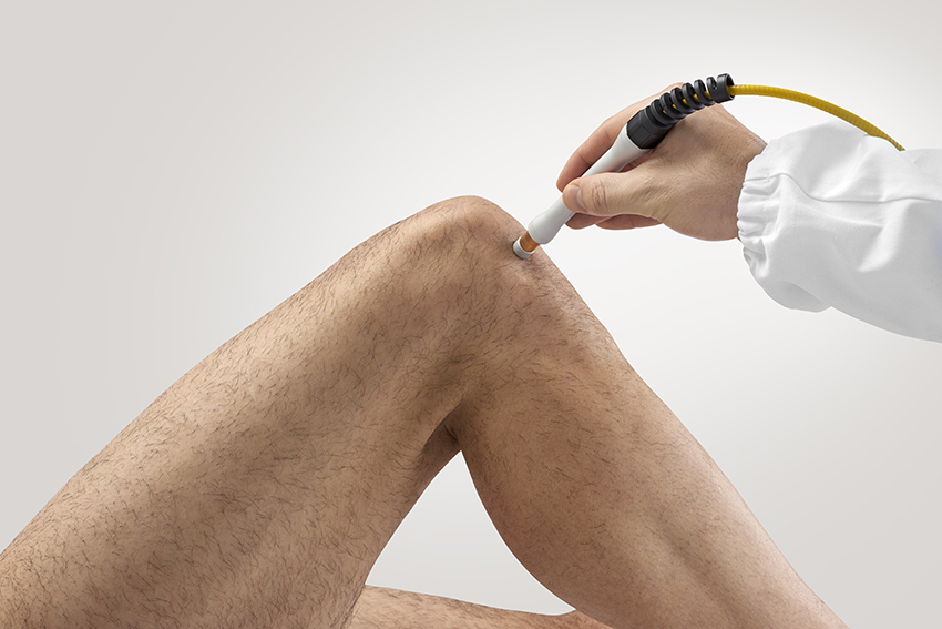 knee pain laser treatment