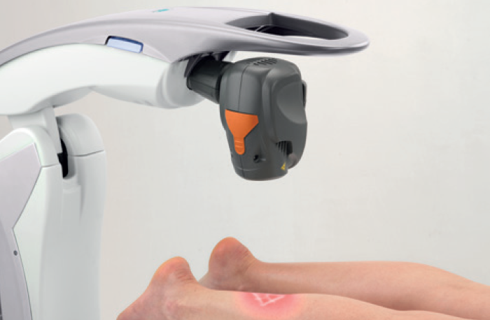 M8 automatic laser treatment