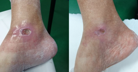 Before and After MLS Laser Therapy - Diabetic foot ulcer