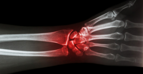 Laser Therapy and magnetotherapy for carpal tunnel syndrome