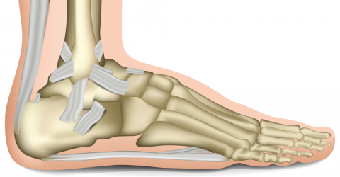 Hilterapia for haemophilic ankle arthropathy
