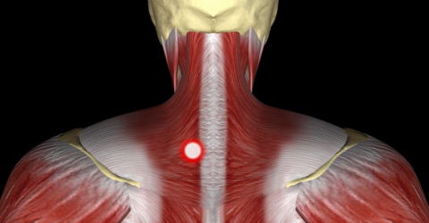 Hilterapia for myofascial pain syndrome