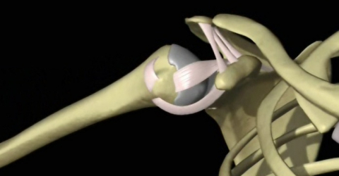 The effectiveness of Hilterapia in subacromial impingement syndrome