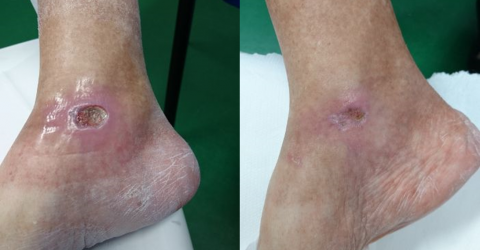 Ulcer wound healing with MiS laser device