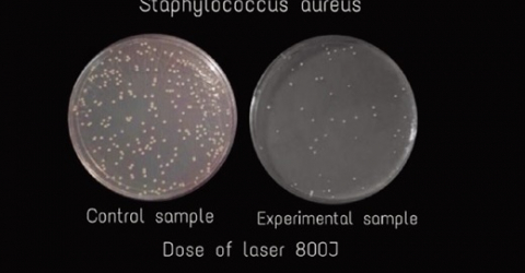 Research - immediate effect Hilterapia on staphylococcus
