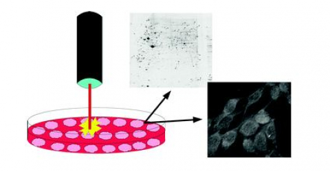 Effect of IR laser on myoblasts: a proteomic study