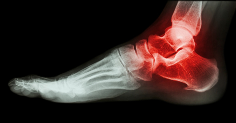 Research - painful calcaneal spur
