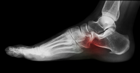 Research - Plantar Fasciitis